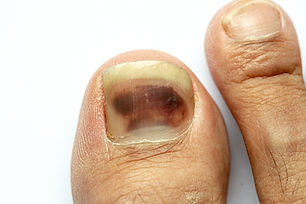 melanoma ungeal.jpg