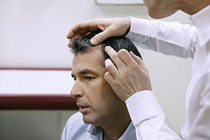 Alopecia_androcronogenética_2.jpg