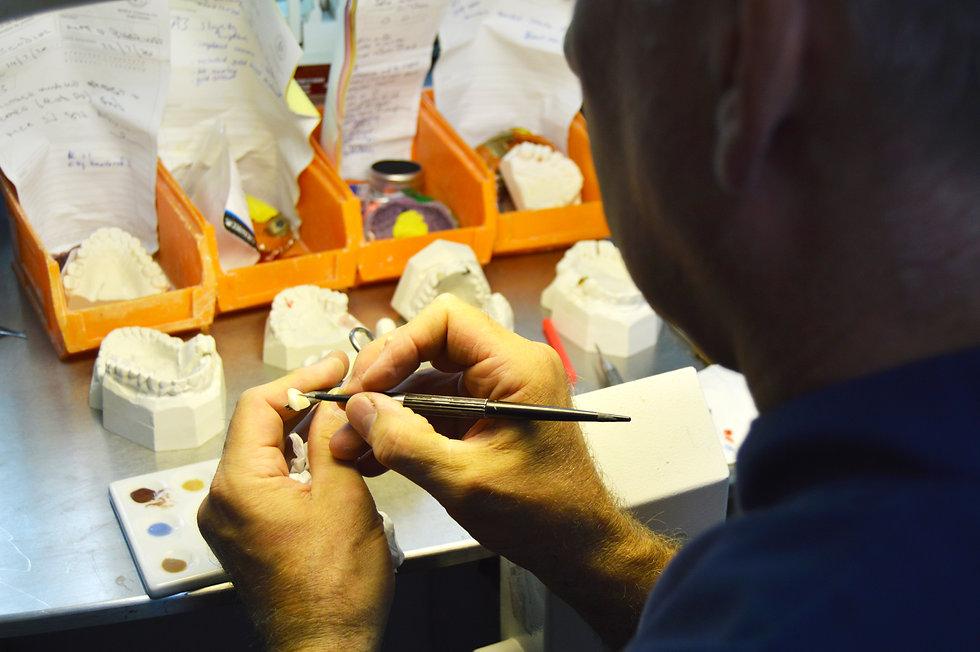 RH Dental Lab Working on teeth