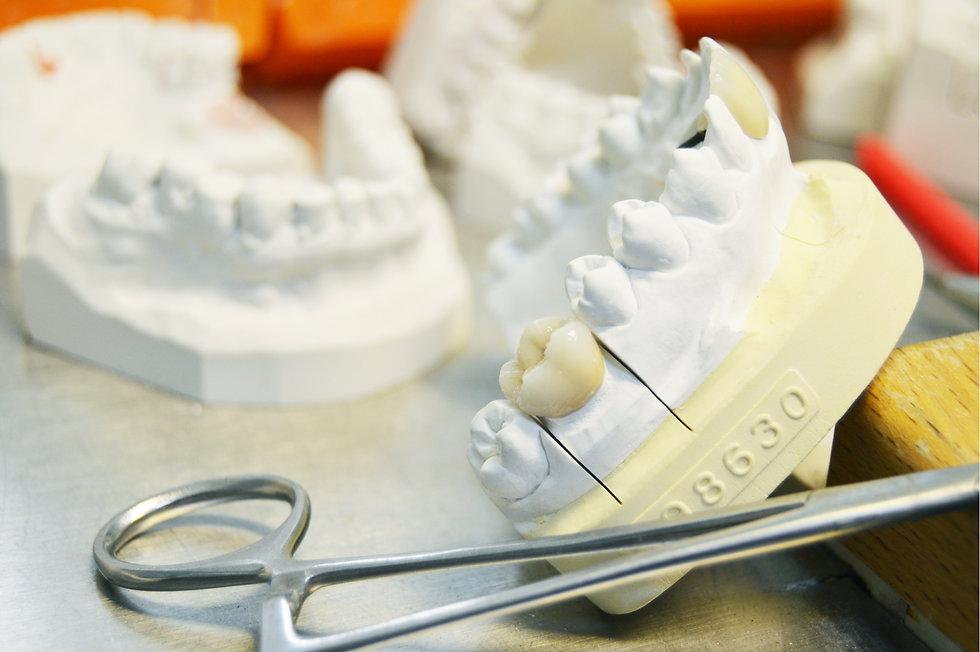 RH Dental Lab Dental Technician Implant on work bench