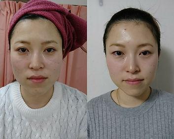 鍼灸院Sora 整体Sora 小顔 美肌 美容鍼灸 水素パック