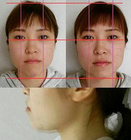 鍼灸院Sora 整体Sora 小顔 美肌 美容鍼灸