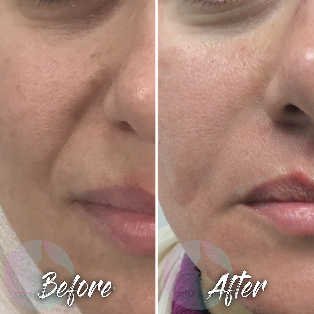 Treatment: Dermal filler to nasolabial folds Results: immediate, lasting 6-12+ months Social down time:  none    Procedure details:  Restylane 0.75 ml to right nasolabial fold using a blunt-tip cannula; PRP microneedling also done at this treatment Pain involved: minimal  National average cost: $700+ per syringe SDIM & Spa cost: $485 per syringe Note: Individual results may vary