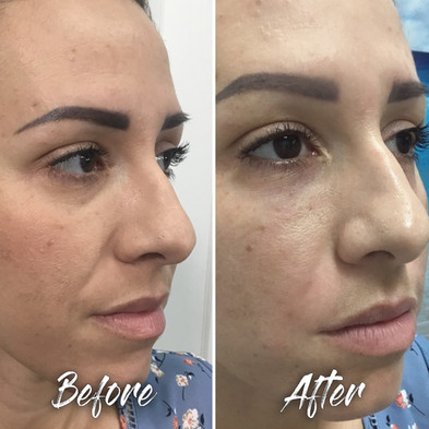 Treatment: Dermal filler to: Tear trough and NLF (face/body area) Results: Immediate, lasting 12+ months Social down time:  None    Procedure details: Restylane 1 mL to tear trough + 1 mL to NLF Pain involved: Nearly zero National average cost: $600 tear trough $485 NLF SDIM & Spa cost: $485 per syringe Note: Individual results may vary