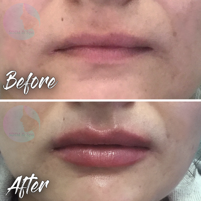 Treatment: Dermal filler to lips Results: Immediate, lasting 9-12 months Social down time: None Procedure details: Juvederm Volbella 1 total syringe (1 ml) to lips Pain involved: Minimal with strong topical anesthesia. Dental block is available National average cost: $700+ per syringe SDIM & Spa cost: $485 per syringe Note: Individual results may vary