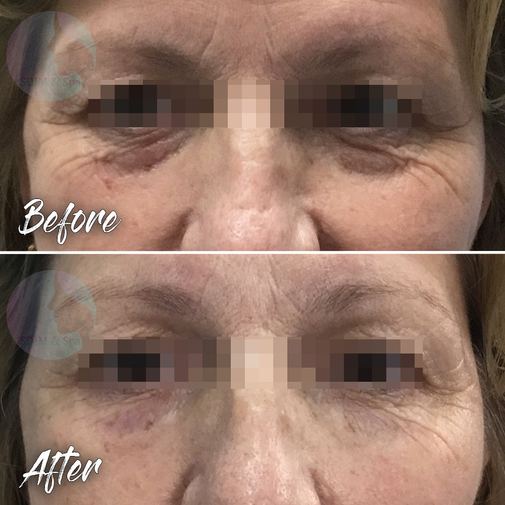 Treatment: Dermal filler to tear trough (infraorbital hollow) Results: Immediate, lasting 12+ months Social down time: None Procedure details: Restylane 0.5 ml to each side Pain involved: Nearly zero National average cost: $700+ per syringe SDIM & Spa cost: $600 per syringe Note: Individual results may vary