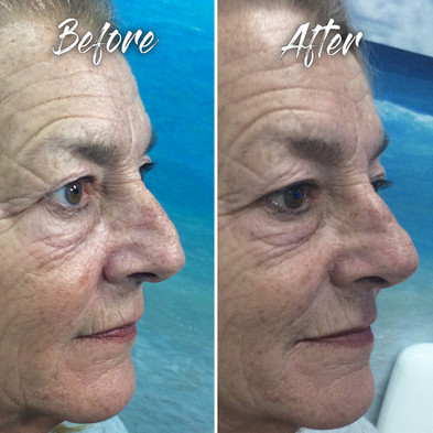 Treatment: Dermal filler liquid nose job (rhinoplasty) Results: immediate; lasting 2+ years Social down time: none Procedure details: Juvederm Voluma 1 syringe to reshape the end of the nose; 30 minutes procedure time Pain involved: minimal National average cost: $700+ per syringe SDIM & Spa cost: $585 per syringe Note: Individual results may vary