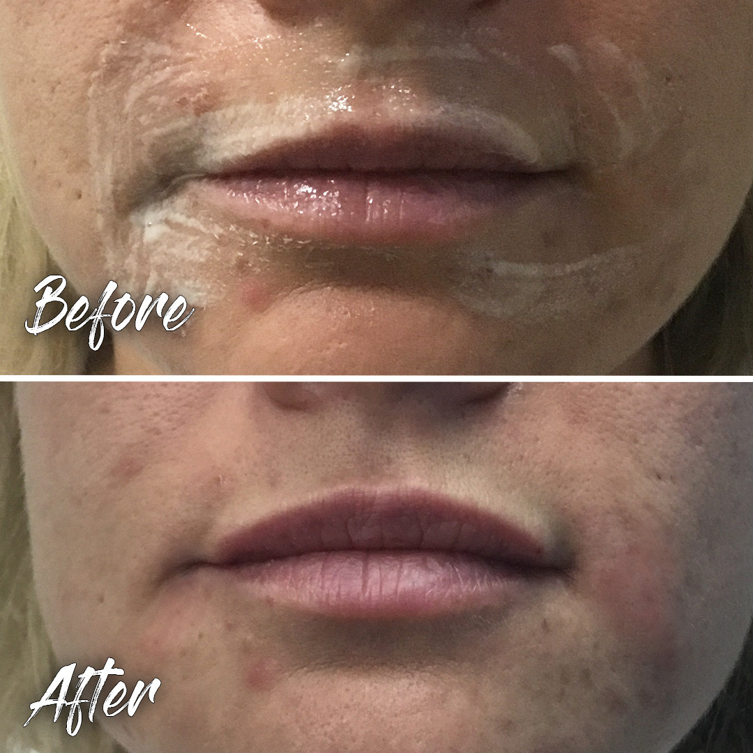 Treatment: Dermal filler to correct upper lip asymmetry Results: immediate, lasting 6-12 months Social down time: None Procedure details: Juvederm Volbella, 0.3 ml (third of a syringe) to right upper lip to correct asymmetry Pain involved: Minimal National average cost: $700+ per syringe SDIM & Spa cost: $485 per syringe Note: Individual results may vary