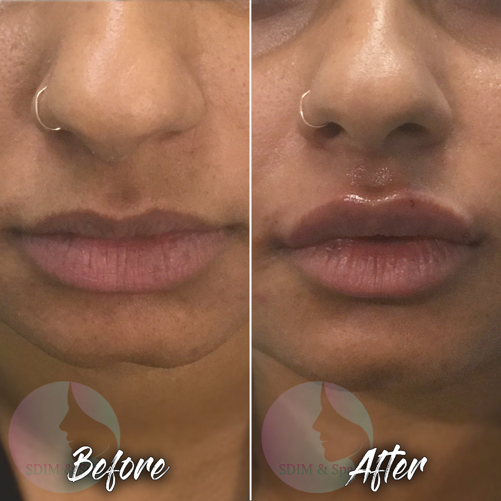 Treatment: Dermal filler to lips Results: Immediate, lasting 6-12 months Social down time: None Procedure details: 1 syringe of Juvederm Volbella Pain involved: Minimal National average cost: $700+ per syringe SDIM & Spa cost: $485 per syringe Note: Individual results may vary
