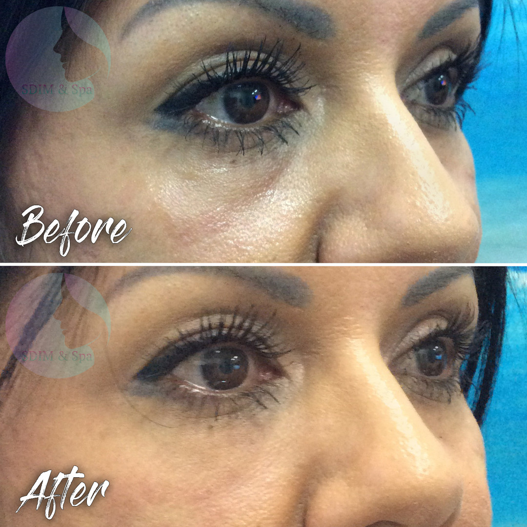 Treatment: Dermal filler to infra-orbital hollow Results: Immediate, lasting 12+ months Social down time: None Procedure details: Juvederm Volbella half syringe (0.5 ml) to each side Pain involved: Minimal to none National average cost: $700+ per syringe, 1-2 syringes needed SDIM & Spa cost: $585 per syringe Note: Individual results may vary