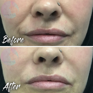Treatment: Dermal filler to nasolabial fold Results: Immediate, lasting 18-24 months Social down time: None Procedure details: Voluma, using blunt tip canula, 0.6 ml RIGHT, 0.4 ml LEFT Pain involved: None National average cost: $700+ per syringe, 1-2 syringes needed SDIM & Spa cost: $585 per syringe Note: Individual results may vary