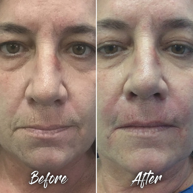 Treatment: HA Dermal filler to nasolabial folds; also fine lines of upper lip Results: Immediate, lasting 1 year or longer Social down time: None Procedure details: Restylane lidocaine total 2 syringes to the following:    1. 0.6 ml to each nasolabial fold using blunt-tip cannula.    2. 0.2 ml to each marionette area using blunt-tip cannula    3. 0.4 ml to upper lip lines using the sharp needle injection technique Pain involved: Minimal to none National average cost: $700+ per syringe, 1-2 syringes needed SDIM & Spa cost: $485 per syringe Note: Individual results may vary