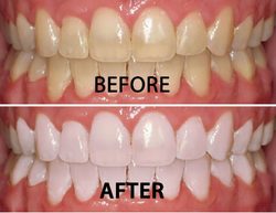 Whitening - Before & After