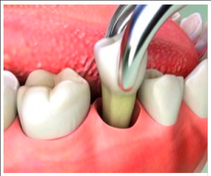 Single tooth extraction
