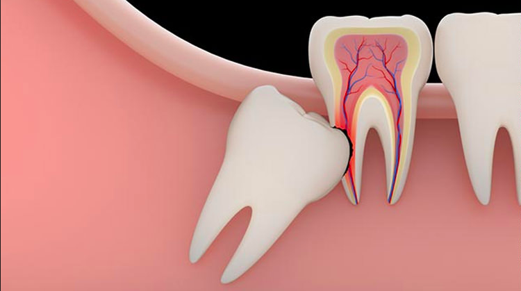 Impacted wisdom tooth extraction