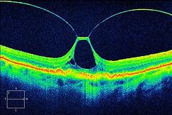 Ocular disease, retina