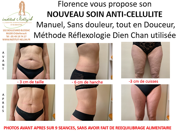 SOIN ANTI CELLULITE.png