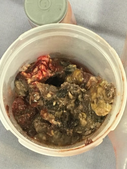 Pancreatitis Durango