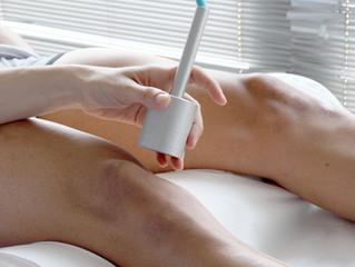 As vantagens da depilação à laser