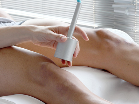 Shock Wave Therapy, Extracorporeal Shock Wave therapy (ESWT)