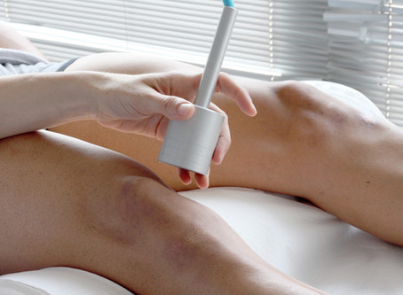 Laser Hair Removal and Cancer