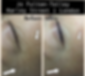 Before and after Micorneedling images