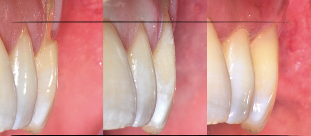 Combined treatment of gingival recessions associated with NCCLs lesions.