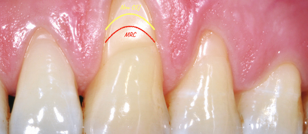 How to predetermine the line of root coverage (MRC) in mucogingival surgery.