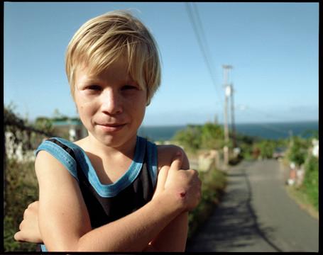 boy with cut.jpg