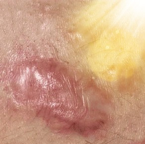 Is a Keloid Just A Scar or Something More?