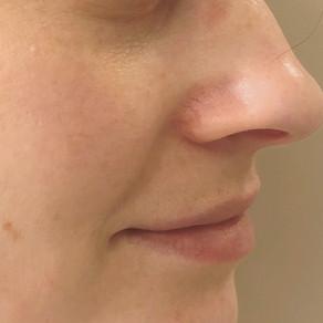 Episode 4: Not Your Average Facial Flushing