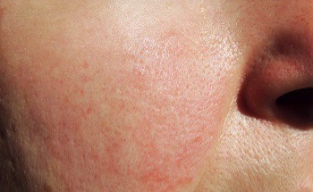 """The Many """"Faces"""" of Rosacea"""