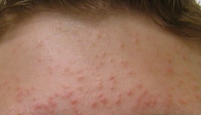 Can fungus cause acne?