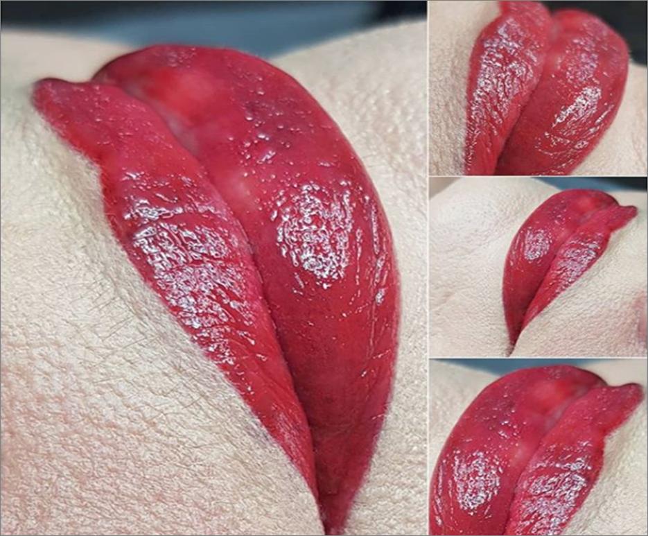 Semi-Permanent Full Lip Blush