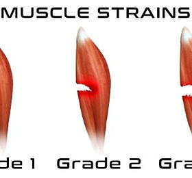 Muscle-Strains-850x425-640w.jpg