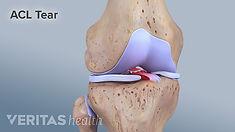 torn-anterior-cruciate-ligament.jpeg