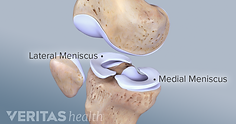 lateral-medial-meniscus.png