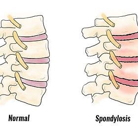 spondylosis800.jpg