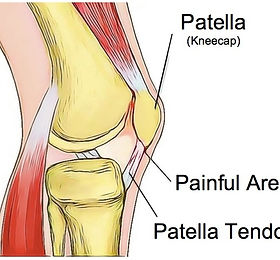 Patella-Tendinopathy-Oct-18.jpg