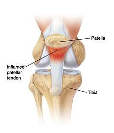 patella+tendinopathy+3.jpg