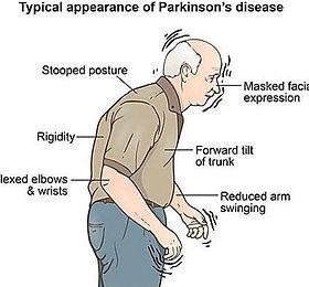 ParkinsonDisease_graphic-signs-e15385988