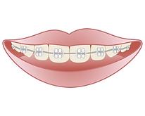 orthodontics004.png