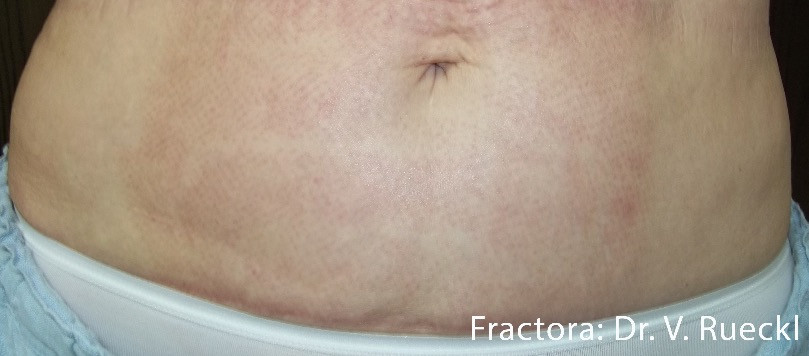 FVR_3a_Fractora_1tx_stomach_50mj_24pinti