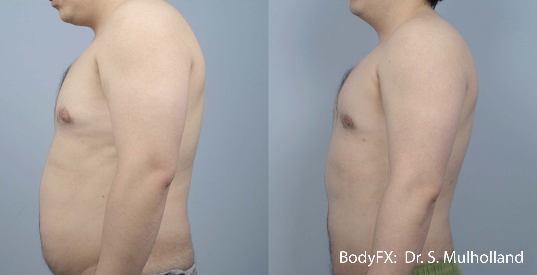 SM_BODYFX_5a_Male_LS.jpg