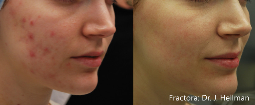 JH_Fractora_3f_4tx_RS_1month_Acne_24pin_