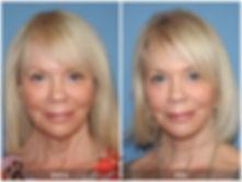 Facelift-Orange-County-Dr-Kevin-Sadati-1