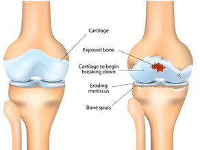 Osteoarthritis- How and Why Exercise Can Help