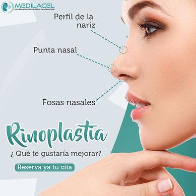 rinoplastia-2-06-2020.jpg