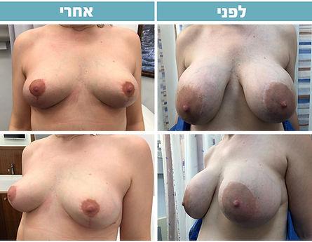 לפני-אחרי-הרמה.jpg
