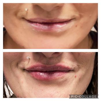 Balance Medical Skin Before & After Photo